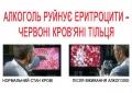 алкоголь разрушает эритроциты изображение